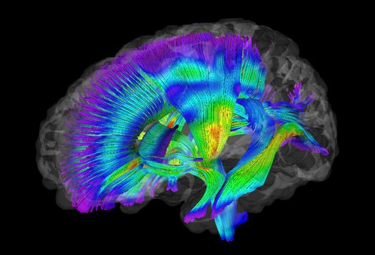 Autism-Brain-429