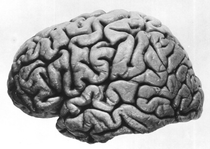 Right_hemisphere_of_J._Piłsudski's_brain